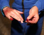 Topje van vinger kwijt door beknelling in machine