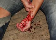 EHBO bij slagaderlijke bloeding