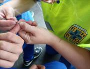 Splinter verwijderen